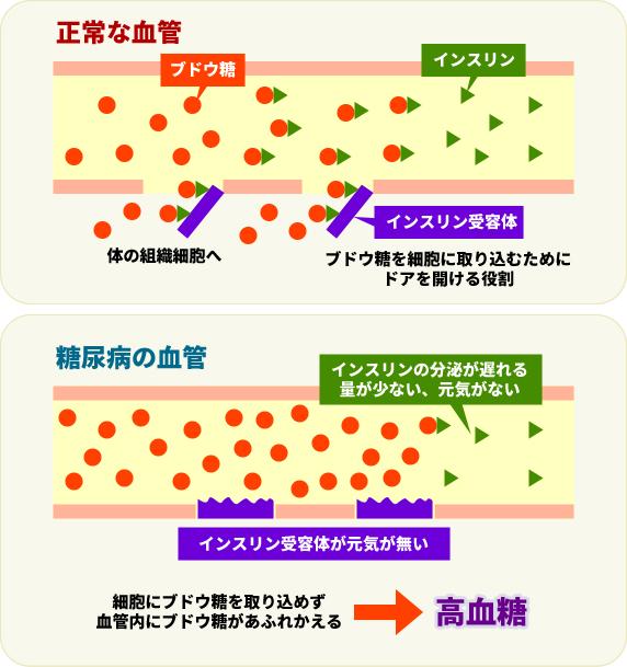 血管内の糖とインスリン