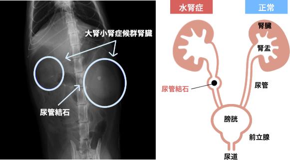 大腎小腎症候群腎臓と尿管結石レントゲン